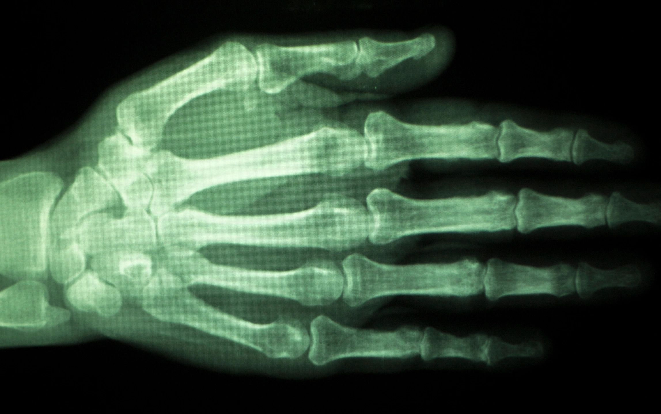 microchipping legal implications